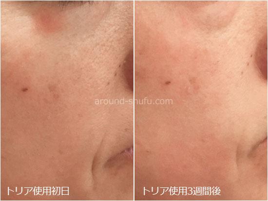 トリア美顔器 肌の変化