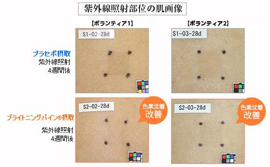 紫外線照射時の肌画像
